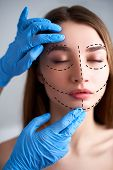Beautiful Young Woman With Perforation Lines On Her Face Before Plastic Surgery Operation. Beauticia poster