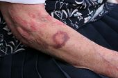 stock photo of bruises  - Bruise and sceriosis on the arm of an elderly female - JPG