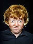 Fat Freckled Boy Portrait