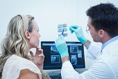 Side view of male dentist showing woman her mouth x-ray