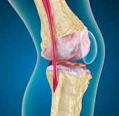 stock photo of knee  - Osteoporosis of the knee joint - JPG