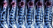 stock photo of mri  - MRI of Lumbar  - JPG