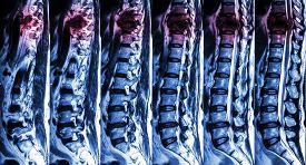 stock photo of spine  - MRI of Lumbar  - JPG