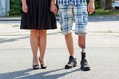 stock photo of artificial limb  - Male amputee wearing a prosthetic leg standing with a woman in a street close up view of their legs and the prosthesis - JPG