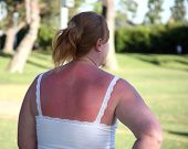 Sunburn Woman