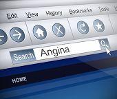 Angina Concept.