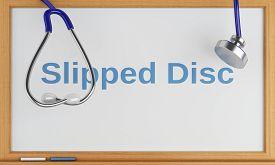 image of herniated disc  - 3d illustration - JPG