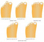 Toe Shape