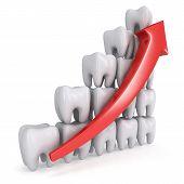 3D Teeth Bar Graph With Red Arrow