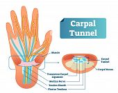 Carpal Tunnel Vector Illustration Scheme. Medical Labeled Diagram Closeup With Isolated Muscle, Tran poster