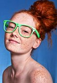 Girl covered with freckles