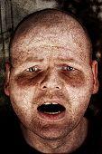 Diseased Man