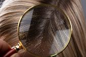 Close-up Of A Dandruff In Blonde Hair Seen Through Magnifying Glass poster