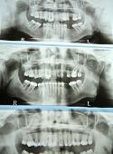 teeth panorama - dental analysis