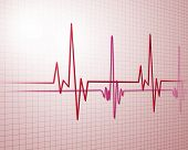 stock photo of ecg chart  - Image of heart beat picture on a colour background - JPG