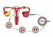 stock photo of artificial insemination  - diagram section illustration of artificial insemination process - JPG