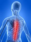 Spine With Pain
