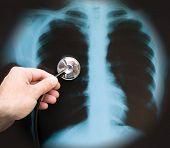 stock photo of pneumonia  - pneumonia concept - JPG