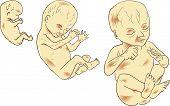 Embrión humano