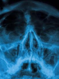 stock photo of sinuses  - X - JPG