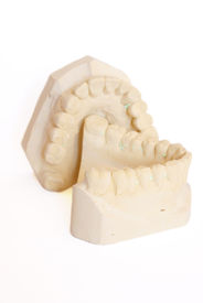 picture of dental impression  - photo of dental impression isolated against white background - JPG