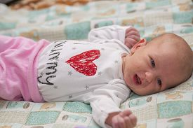 picture of papule  - The baby is lying on the bed - JPG