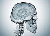 Gehirn X-Ray