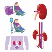 image of dialysis  - Hemodialysis and peritoneal dialysis are both used to treat kidney  - JPG