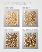 Постер, плакат: Osteoporosis Stages Image Osteoporosis Bone And Healthy Bone In Comparison Isolated On A White Back