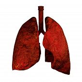 Lungs Of Smokers