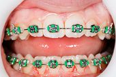 stock photo of overbite  - Closeup photo of orthodontic braces on teeth - JPG