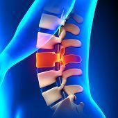 L3 Disc - Lumbar Spine