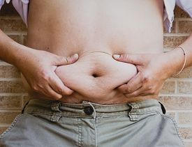 picture of pot-bellied  - hand squeezing belly fat around belly button - JPG