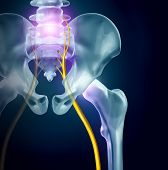 Sciatica Pain Symptoms And Diagnosis Medical Concept As A Disease Causing Physical Problems With 3d  poster