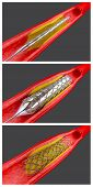 picture of atherosclerosis  - Balloon angioplasty procedure with placing a stent - JPG