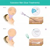 Scar Treatments. Illustration Explain A Treatment That Involves Cutting The Strands Of Severed Fibro poster