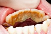 foto of gingivitis  - Massive tartar ans plaque in human mouth - JPG