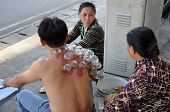 Cupping therapy in Saigon, Vietnam