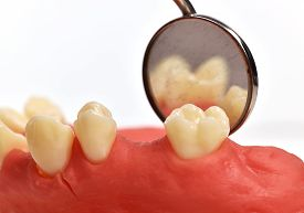 picture of overbite  - dental implant tooth and oral mirror close up - JPG