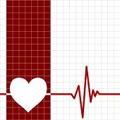 stock photo of ecg chart  - Heart monitor - JPG