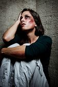 picture of love hurts  - Abused woman wondering why her loved one would hurt her in this way - JPG