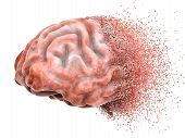 Brain Disease Or Destruction, Memory Loss Concept. 3d Rendering Isolated On White Background poster