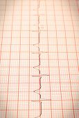 Electrocardiogram Graph Ekg Heart Rhythm, Concept Of Health Care And Medicine poster