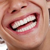 Closeup shot of awesome healthy teeth over white background