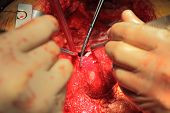 Dissection Aneurysm Of The Left Ventricle
