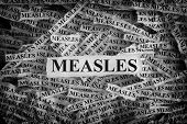 Measles. Torn Pieces Of Paper With The Words Measles. Concept Image. Black And White. Close Up. poster