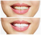 Woman Teeth Before and After Whitening. Over white background. Happy smiling woman. Dental health Co