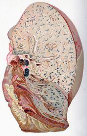 stock photo of pneumonia  - Lung - JPG