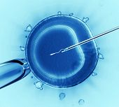 stock photo of birth  - Sperm injection into the cell under the microscope - JPG
