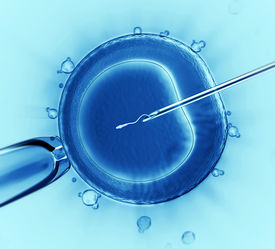 stock photo of human egg  - Sperm injection into the cell under the microscope - JPG